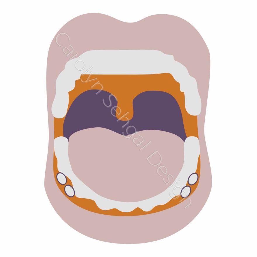 illustration of a mouth wide open there in between the teeth and the lips on the lower jaw there are 4 pills (2 on each side).